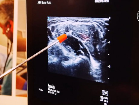 3 Things to Know Before Making the Switch to Point-of-Care Ultrasound